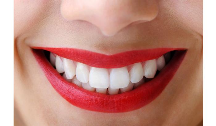 چند راه برای سفید کردن دندان ها
