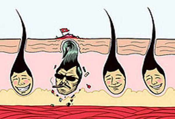 روش پیشگیری مو زیر پوستی اپیلاسیون