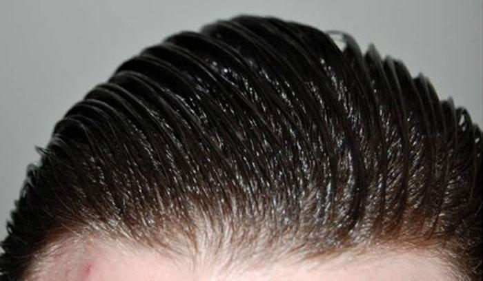 ویتامینه ی موی چرب