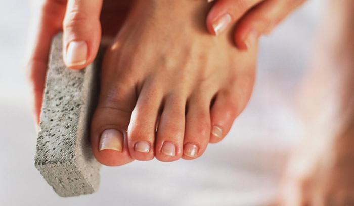 درمانهای خانگی ترک پاشنهی پا
