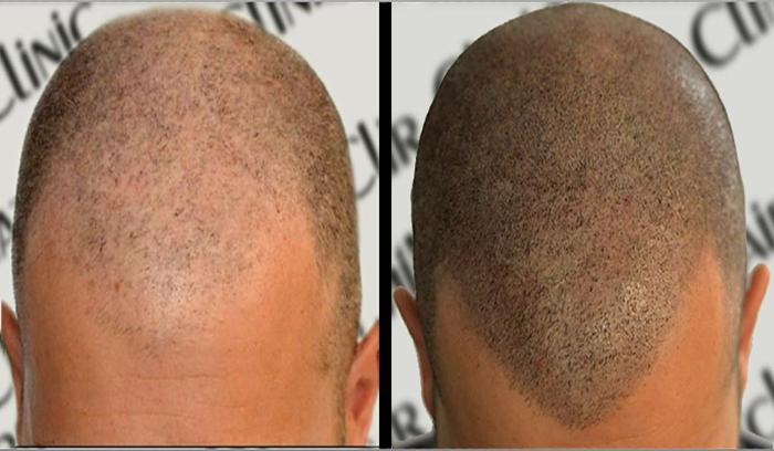 میکروپیگمنتیشن موی سر در آرایشگاه